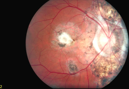fundus photo color